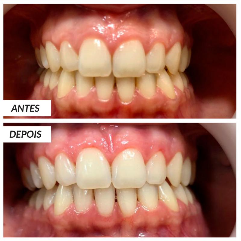 Clareamento Dental A Laser Oral Unic Ela Inspira