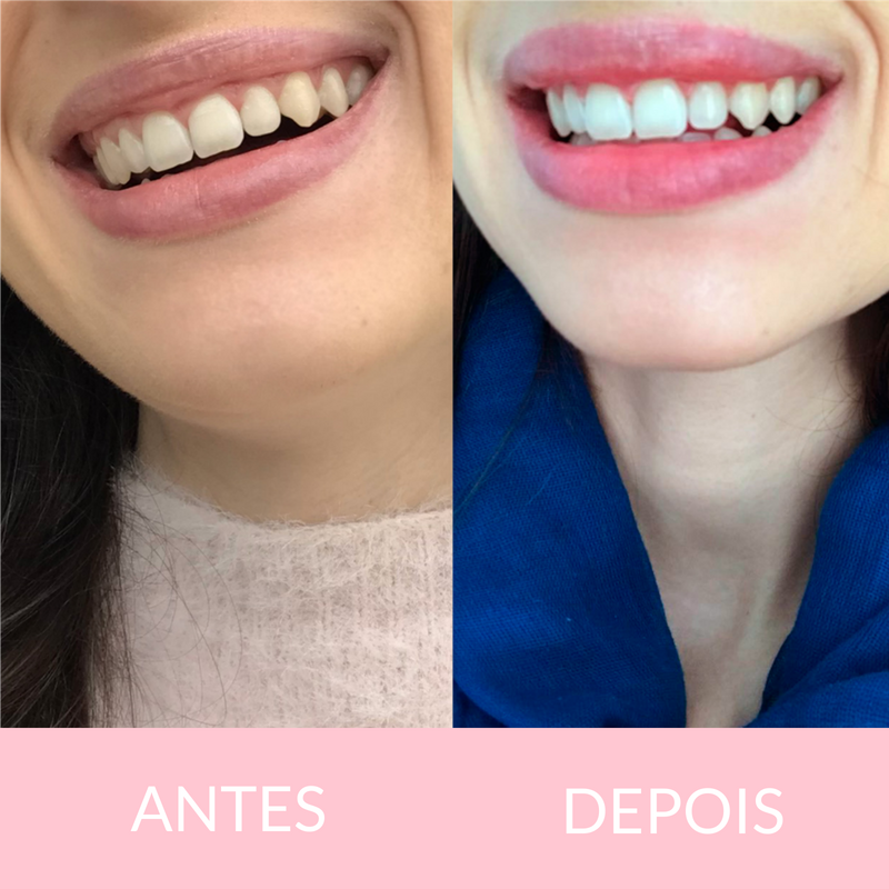 Clareamento Dental A Laser Oral Unic Ela Inspira